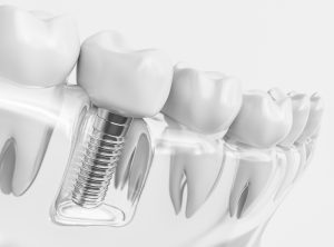 Clear 3D image of Dental Implants with Crown