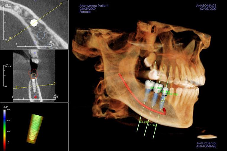 advanced dental implant technology