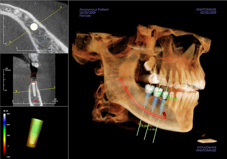 3D images from the CT