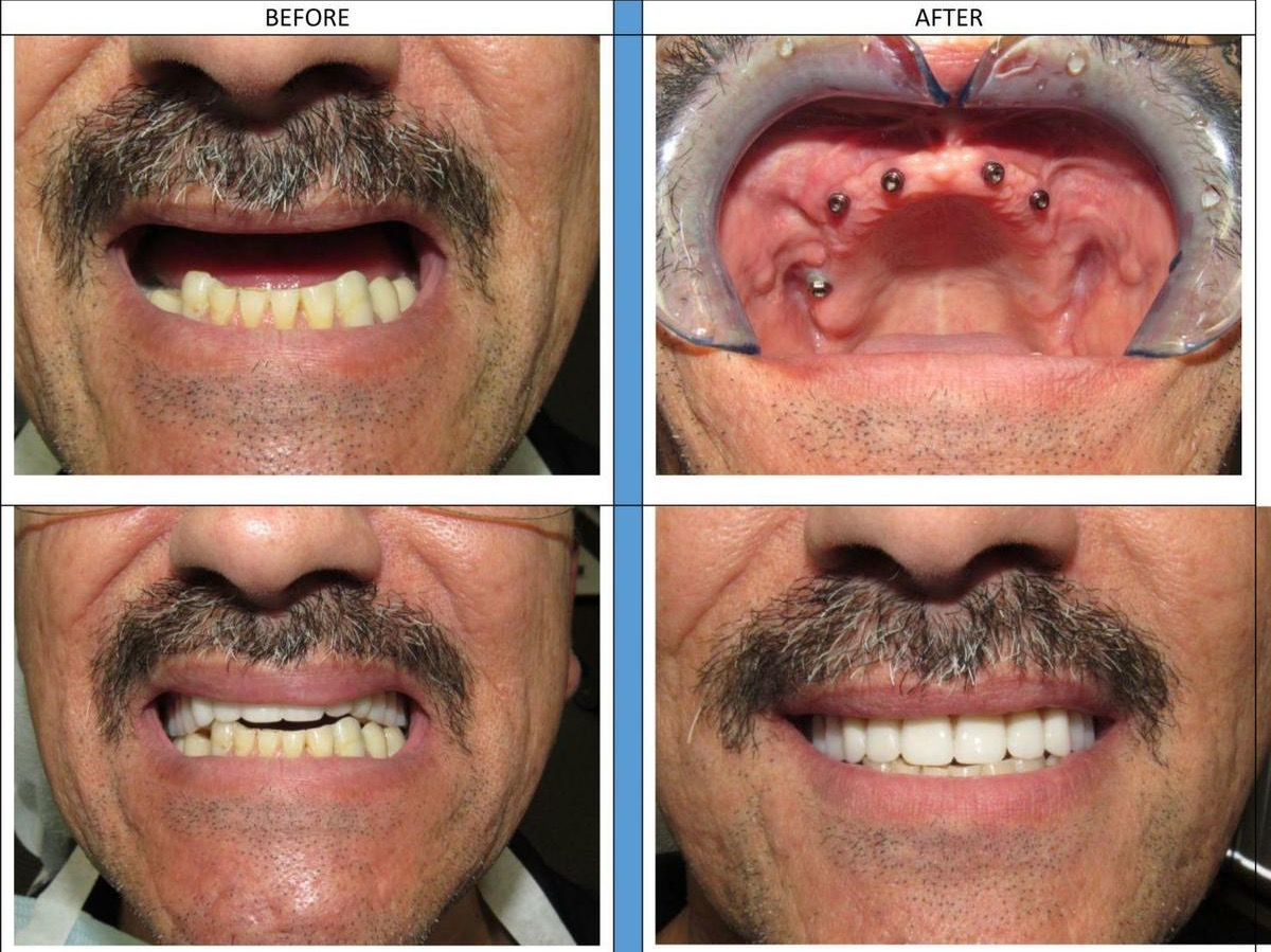 all-on-4-dental-implants-cost