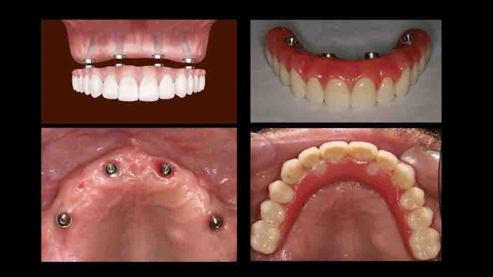 all-on-4-implant-cost