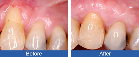 Before and After - Connective Tissue Grafting - Greater Pittsburgh Dental Implants