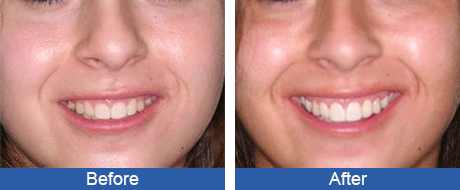 B&A - Crown Elongation - Greater Pittsburgh Dental Implants & Periodontics