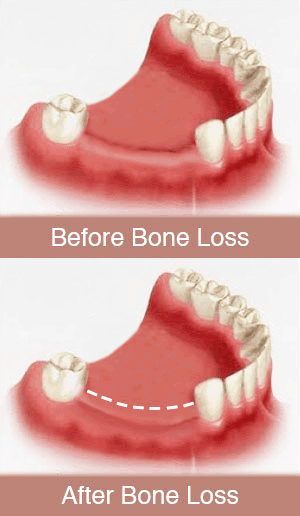 Periodontal Bone Regeneration