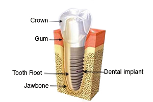 single dental implant