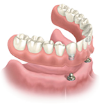 removable dentures supported by implants