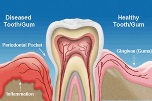 About Gum Disease