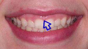 periodontal videos