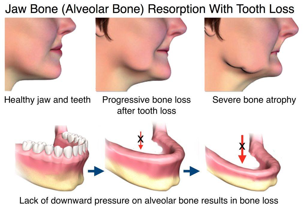 Image result for dental implants muscle atrophy