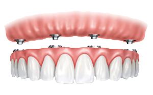 TeethToday procedure