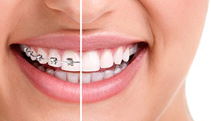 With accelerated orthodontics, the time you spend wearing braces can be cut in half.
